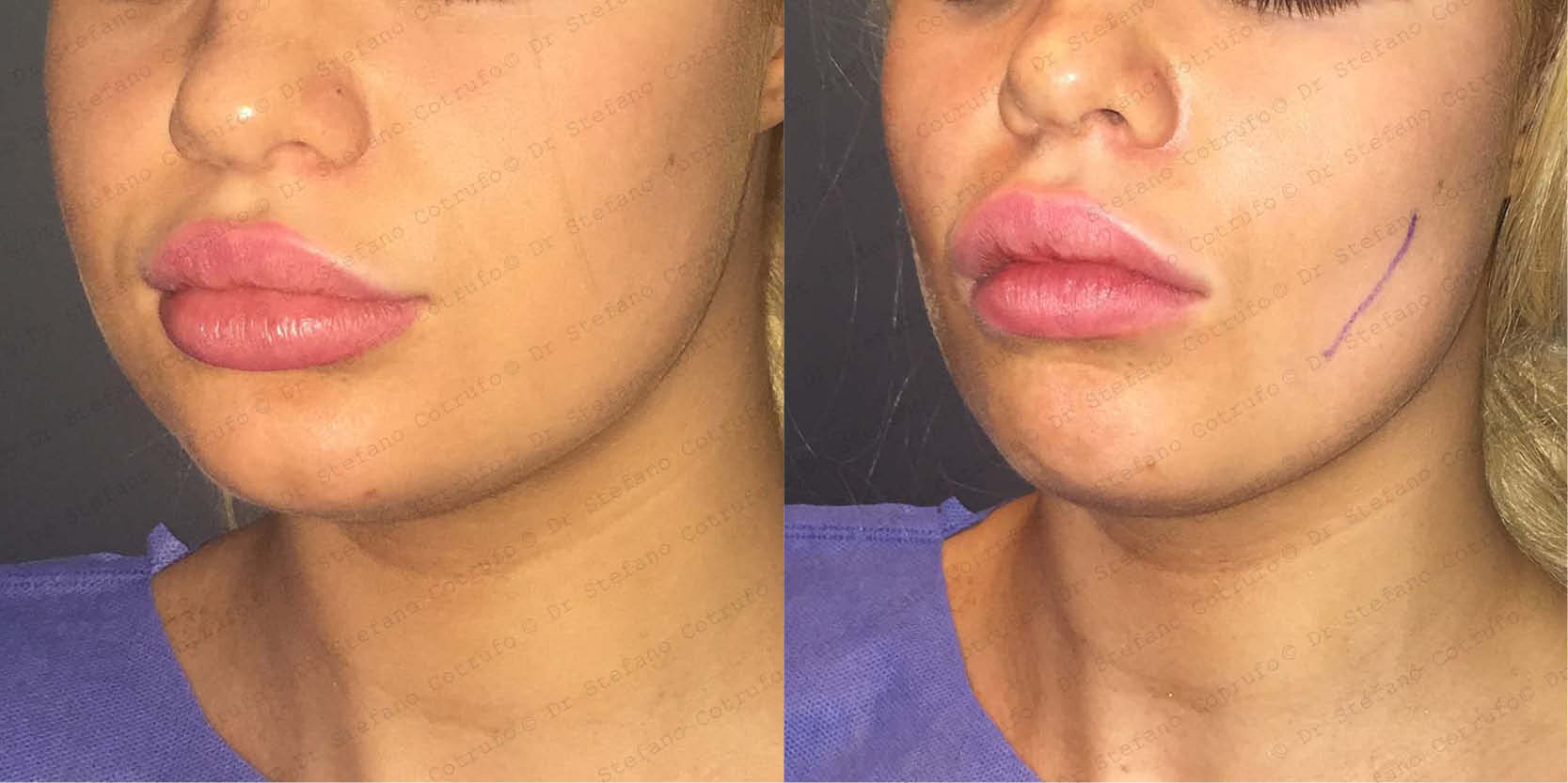 Cheek Surgery – Dr Stefano Cotrufo